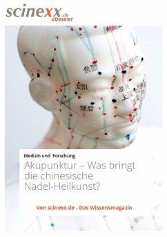 Akupunktur (eBook, ePUB)